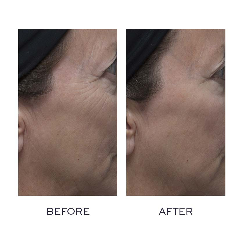 Peptide4 before and after